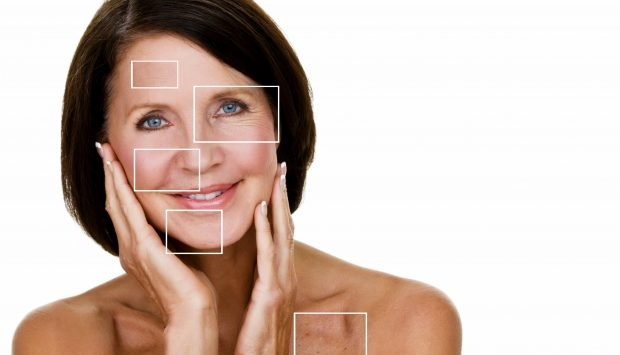 Woman smiles at camera with areas of consern on her face highlighted